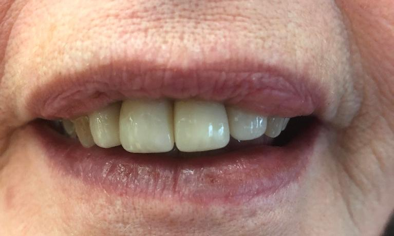 Replace-Anterior-Crowns-After-Image