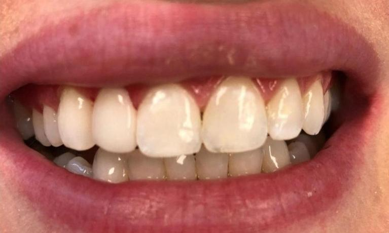medium_After-Veneers_20188611445_564.jpg