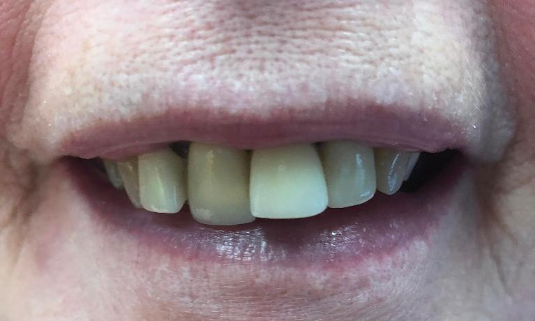 Replace-Anterior-Crowns-Before-Image